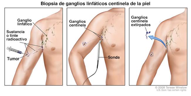 Cirugía de gangios linfáticos en cirugía de melanoma. - National ...