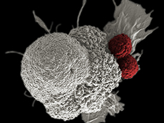 A pseudo-colored scanning electron micrograph of an oral squamous cancer cell (white) being attacked by two cytotoxic T cells (red), part of a natural immune response.