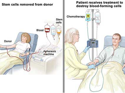patient receiving stem cell transplant
