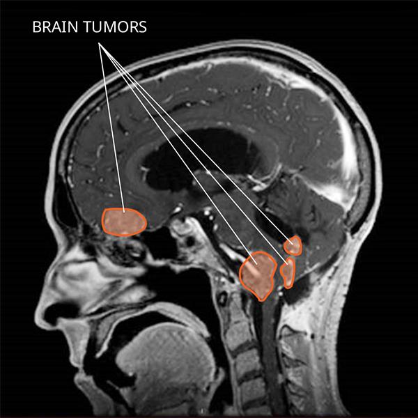 Choroid Plexus Tumors National Cancer Institute