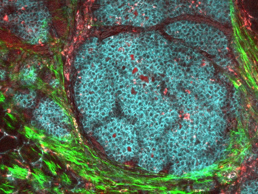 Image of a breast cancer tumor in a mouse.