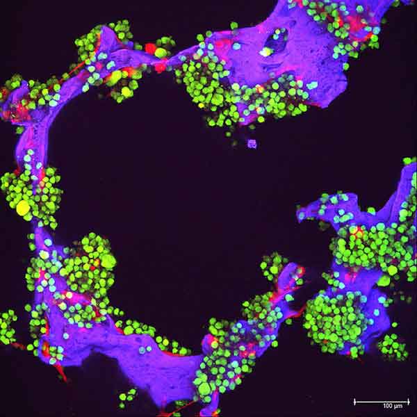 Myeloma tumor cells (green) and bone cells (red) growing on a lab-made scaffold (purple).