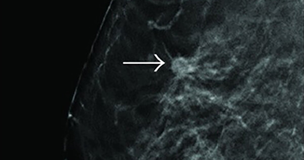 tomosynthesis clinical trials 3d mammograms may improve breast cancer known as digital breast tomosynthesis that 3d is actually better would come from a clinical trial.