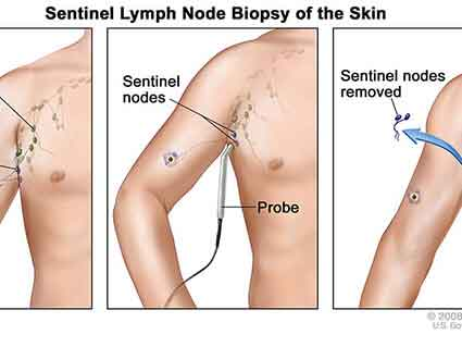 A sentinel lymph node biopsy of the skin.