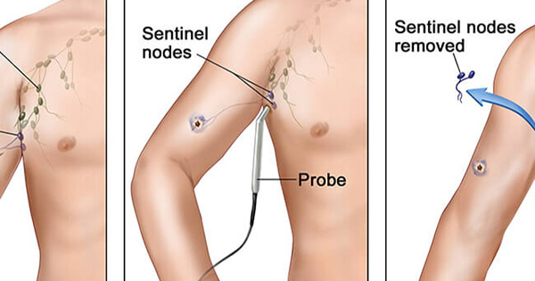 Lymph node surgery in melanoma national cancer institute ccuart Images