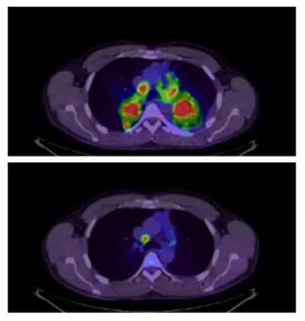 Before and after PET scan of patient treated with crizotinib.