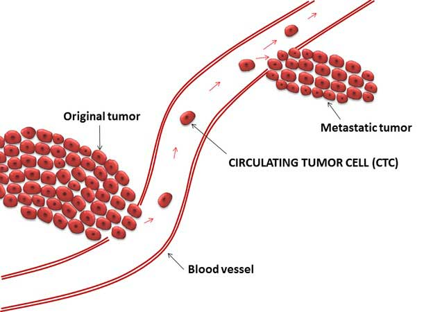 Liquid Biopsy May Help Predict Breast Cancer Relapse National
