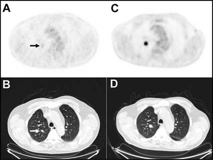 PET and CT scans showing a lung nodule.