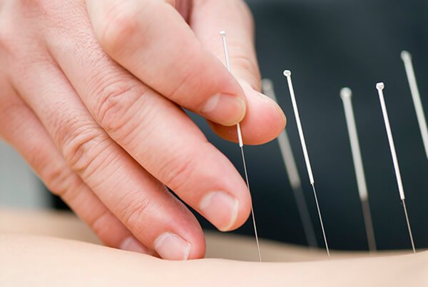 Close-up of hand inserting acupuncture needles