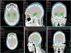 An image comparing whole brain radiation therapy that avoids the hippocampus with standard whole brain radiation therapy.