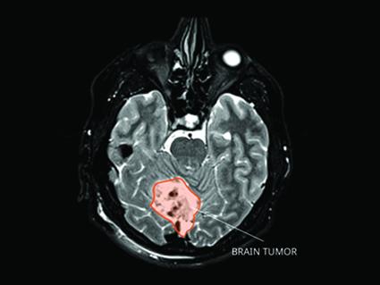 An MRI of a medulloblastoma tumor.
