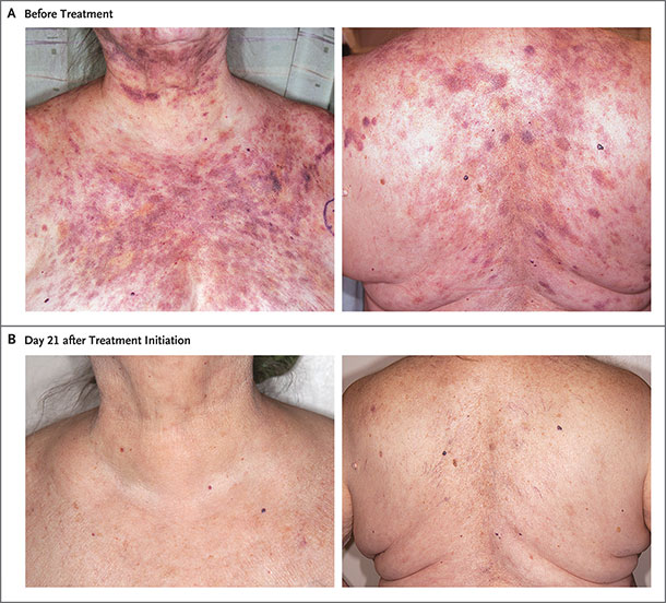Photographs of a woman with BPDCN skin lesions before and after treatment with tagraxofusp.