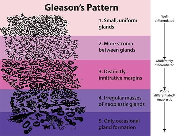 Gleason Pattern for Histologic Grading of Prostate Cancer