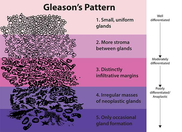 Gleason Pattern for Histologic Grading of Prostate Cancer