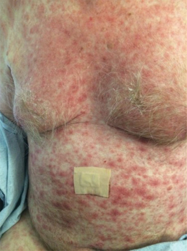 Image of a man with a severe rash across his chest and stomach.