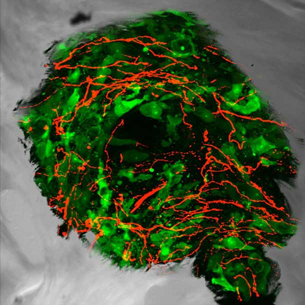 Sensory Nerve Fibers in Prostate Tumor Cells