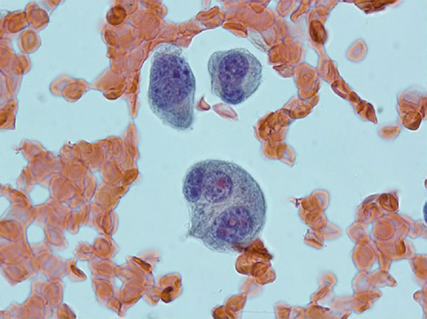 An image of abnormal plasma cells.