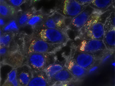 Triple-negative breast cancer cells stained to show profound molecular heterogeneity.