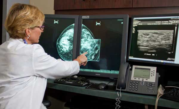 Blond woman physician in white lab coat examines two digital mammogram images on side-by-side flat screen monitors