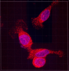 Image of green fluorescent protein of breast cancer cells implanted in the mammary fat pad of female nude mouse. The slide that shows NOS2 being targeted with drug; the slide background is black and  NOS2 appears in orange and purple blotches.