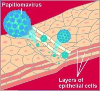 A drawing of HPV virus attacking cervical cancer cells. The HPV virus is represented as a number blue spheres and the epithelial cells are peach colored. The drawing is on a red background.
