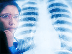 Doctor looking at an x ray of a ribcage