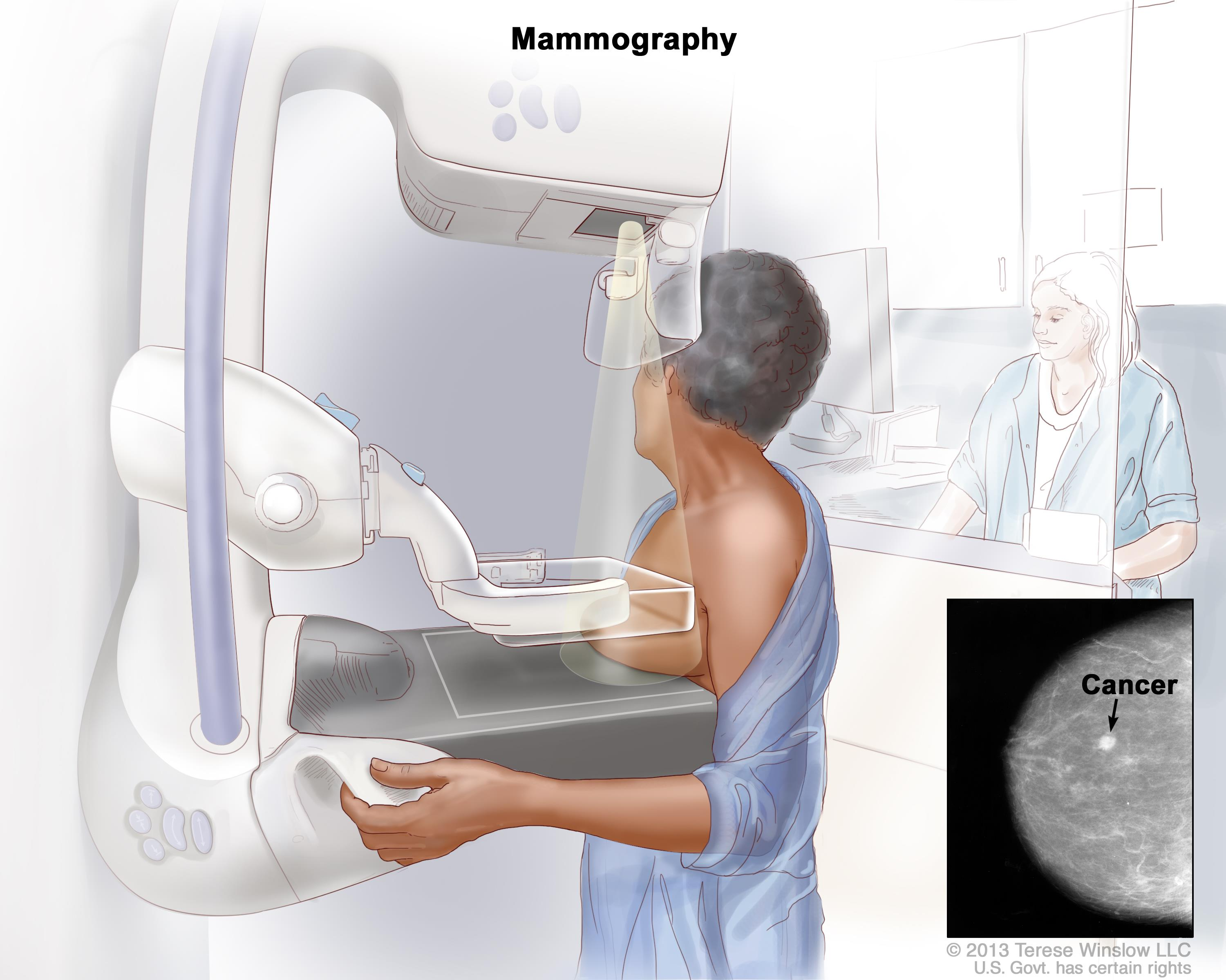 Mammography; the left breast is pressed between two plates.  An X-ray machine is used to take pictures of the breast. An inset shows the x-ray film image with an arrow pointed at abnormal tissue.
