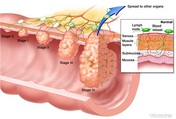 Colon cancer staging; shows tumors growing through layers of the colon wall for Stage 0, Stage I, Stage II, Stage III, and Stage IV colon cancer.  Inset shows serosa, muscle, submucosa and mucosa layers of the colon wall, and lymph nodes and blood vessels.
