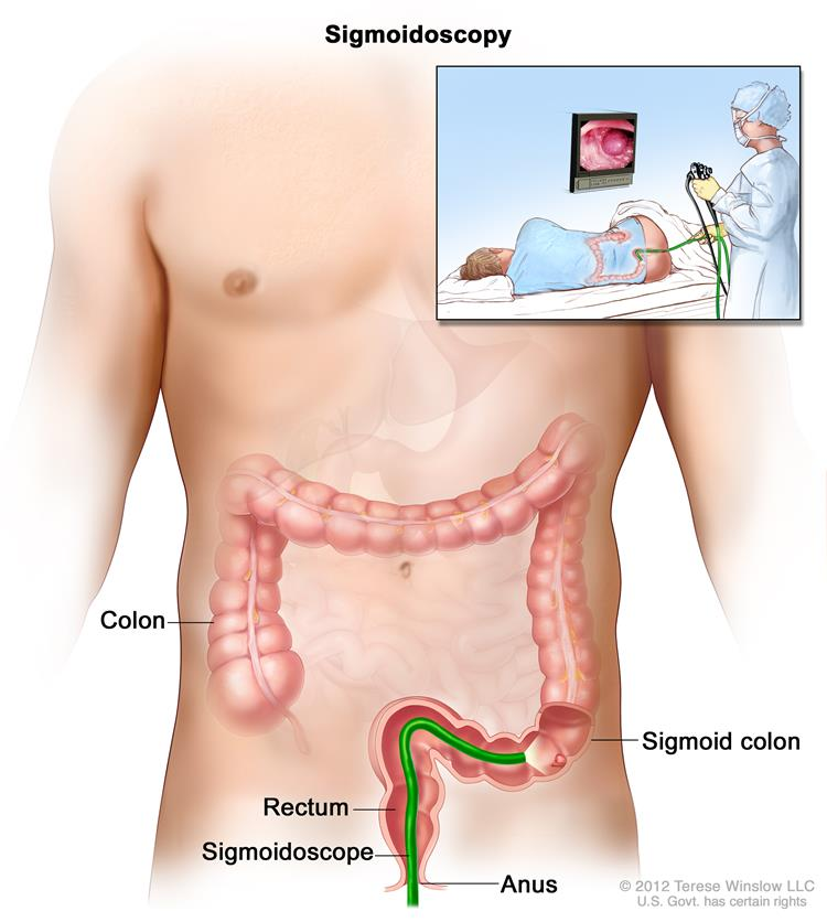 Colorectal Surgery - Gastrointestinal Complications of Cancer