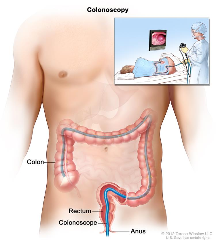 colon cancer treatment (pdq®)—patient version - national cancer, Human Body