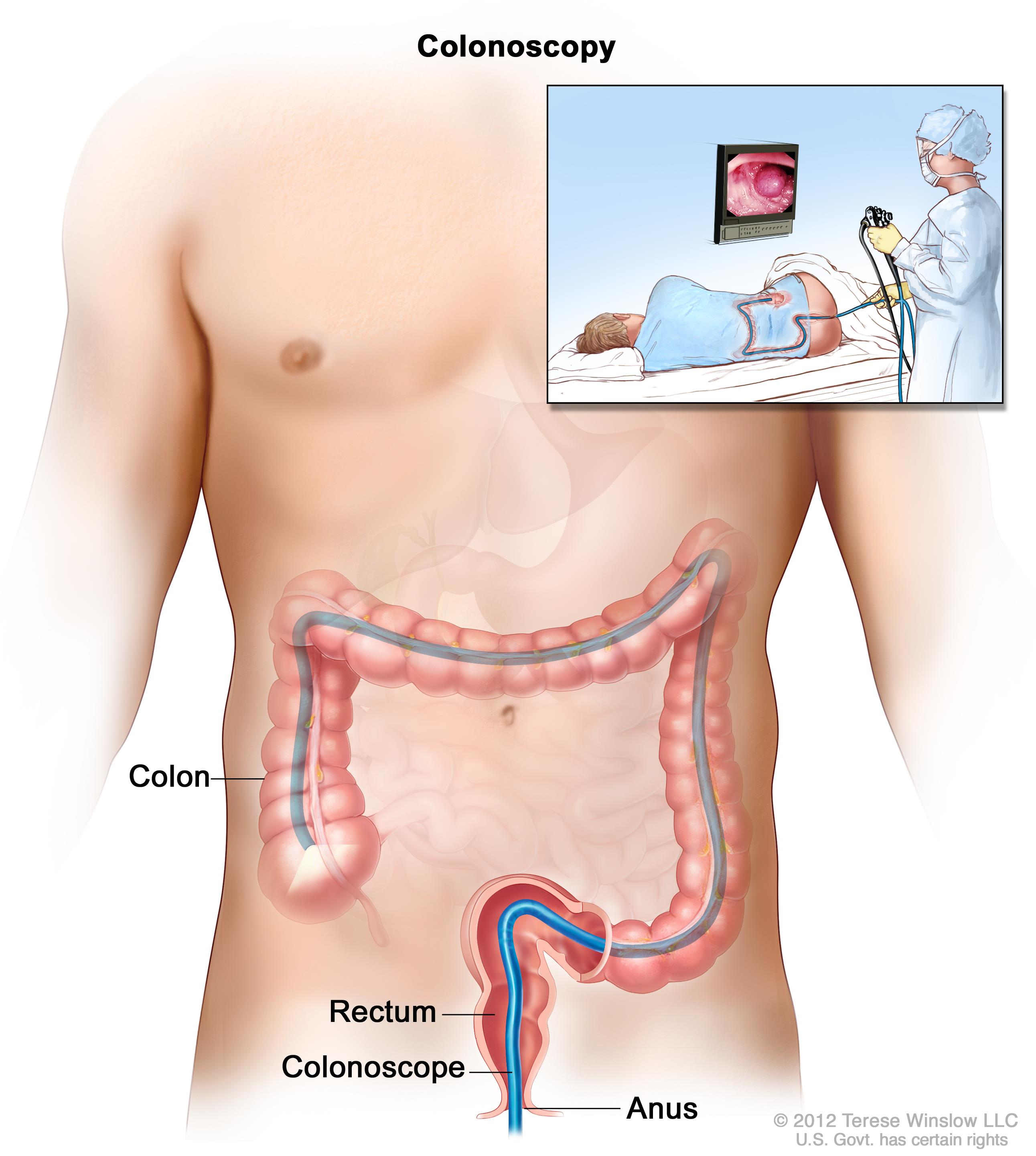 Enlarge Colonoscopy ...  sc 1 st  National Cancer Institute & Gastrointestinal Complications (PDQ®)u2014Patient Version - National ... islam-shia.org
