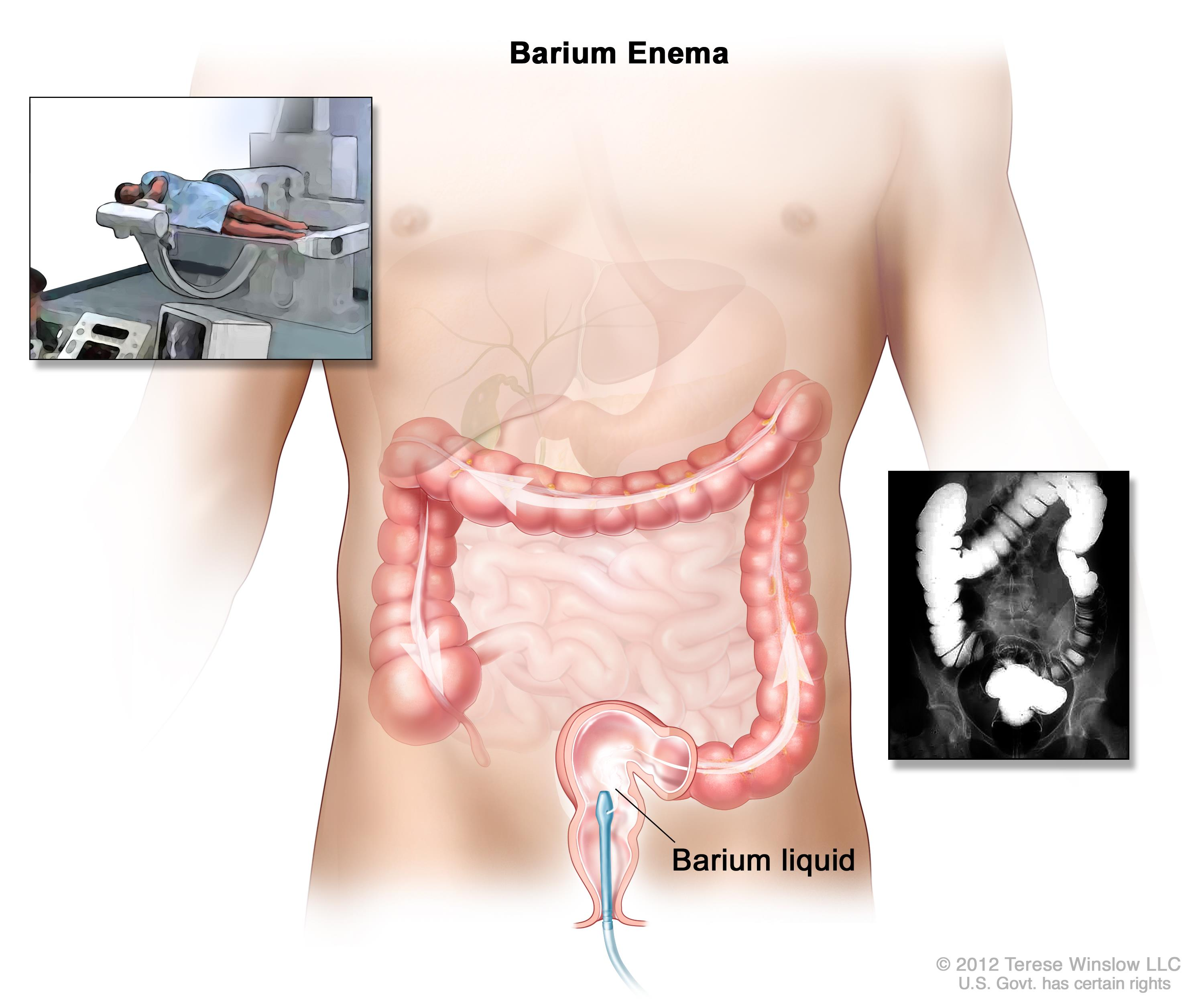 Barium enema procedure; shows barium liquid being put into the rectum and flowing through the colon.  Inset shows person on table having a barium enema.