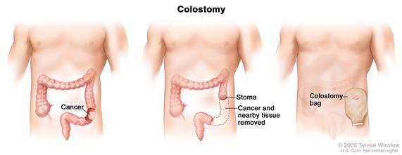 Three panel drawing showing colon cancer surgery with colostomy; first panel shows area of colon with cancer, middle panel shows cancer and nearby tissue removed and stoma created, last panel shows a colostomy bag attached to the stoma.