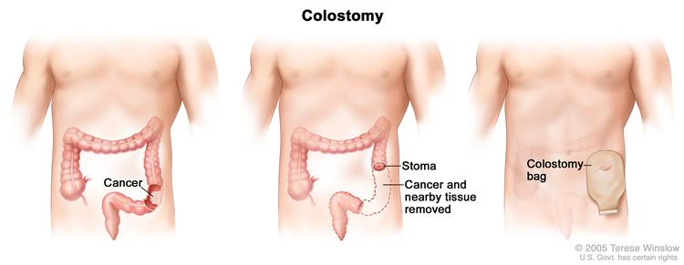 Colon Cancer Surgery With Colostomy Part Of The Containing And Nearby Healthy Tissue Is Removed A Stoma Created Bag
