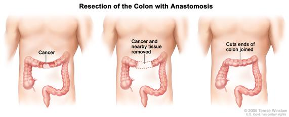 Three panel drawing showing colon cancer surgery with anastomosis; first panel shows area of colon with cancer, middle panel shows cancer and nearby tissue removed, last panel shows cut ends of colon joined.
