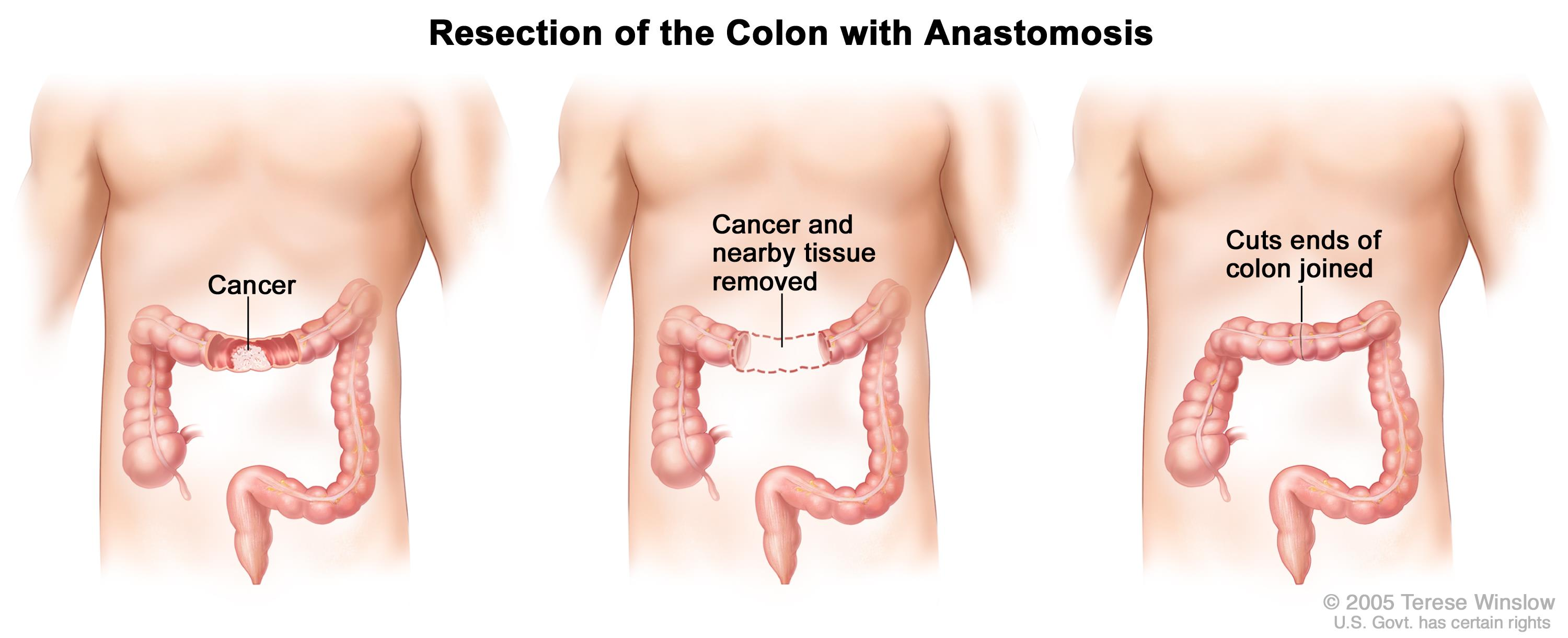 Colon Cancer Treatment Pdqpatient Version National Cancer