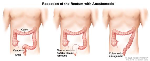 Three panel drawing showing rectal cancer surgery with anastomosis; first panel shows area of rectum with cancer, middle panel shows cancer and nearby tissue removed, last panel shows the colon and anus joined.