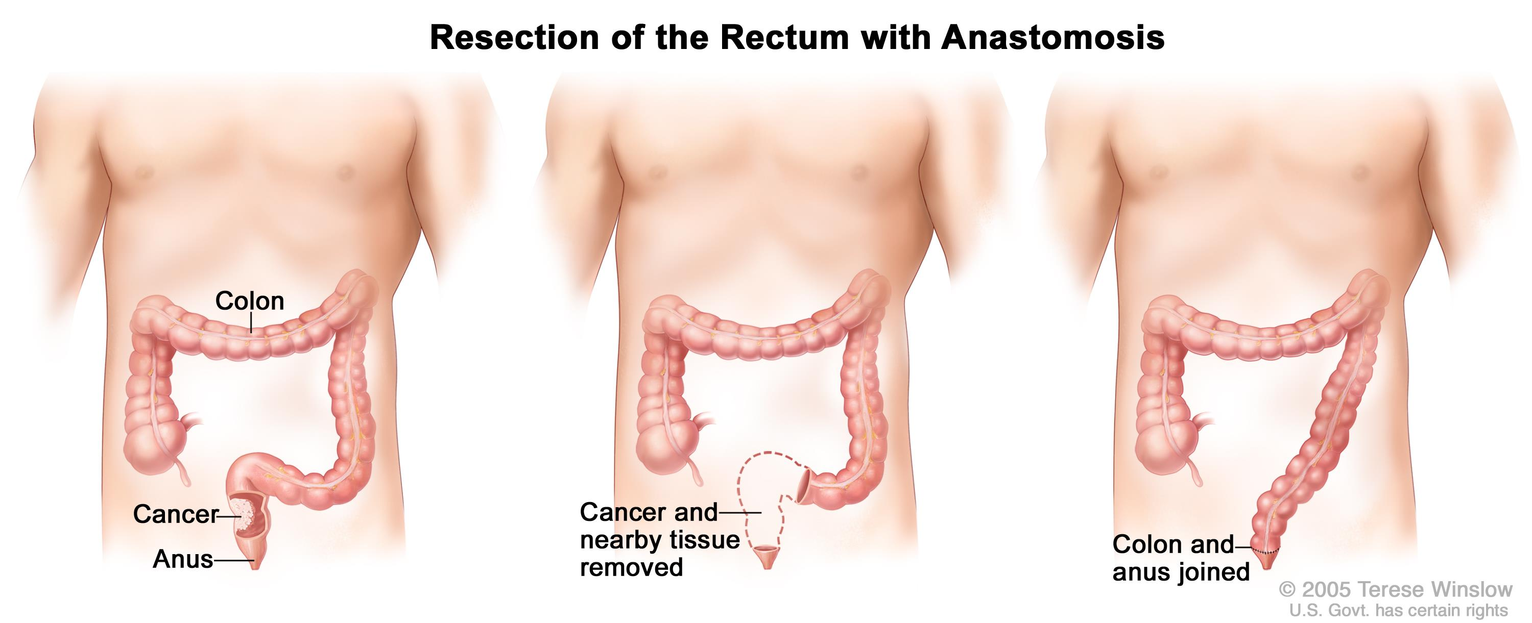 Does anal sex cause colon cancer