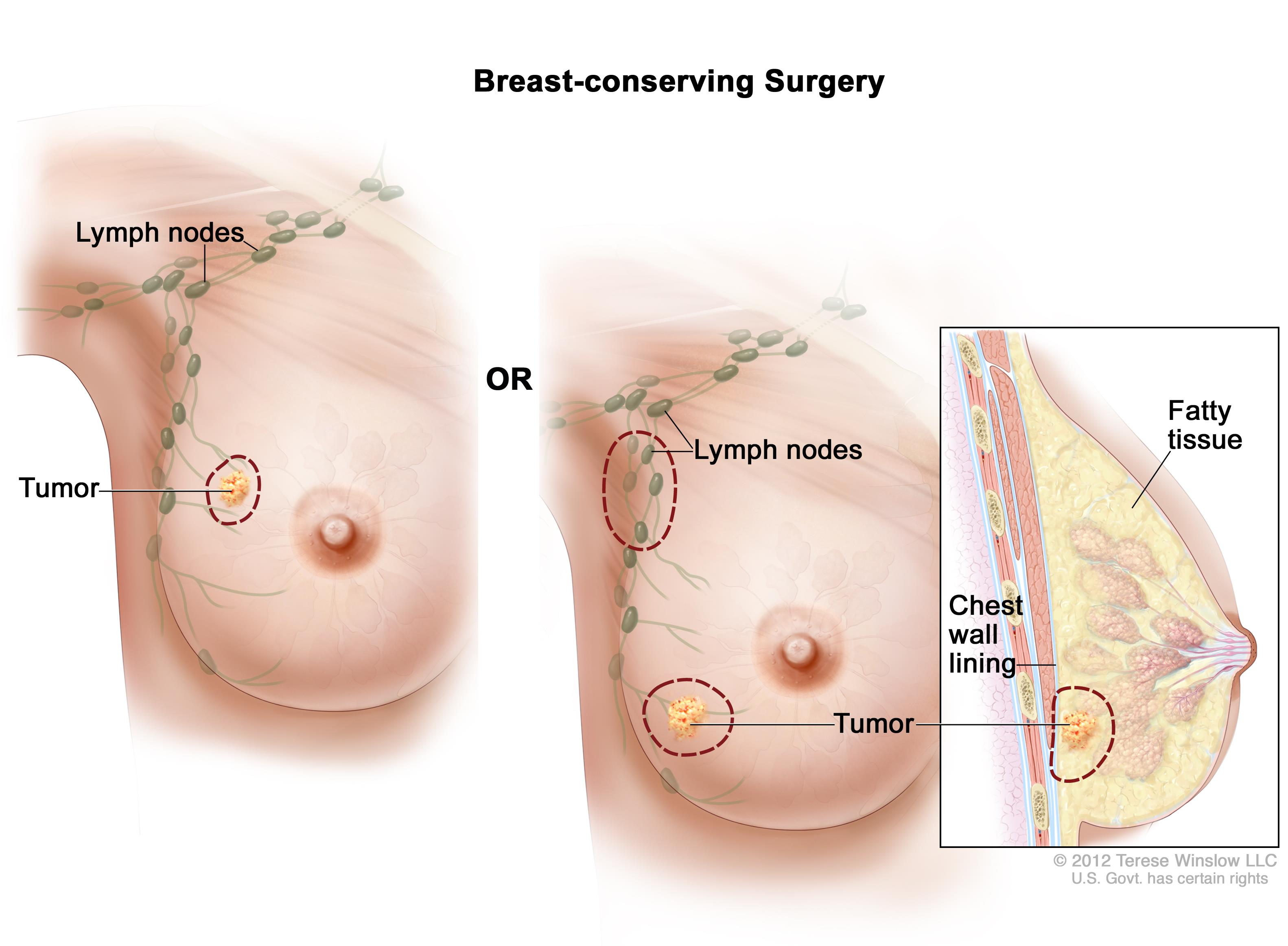 Breast lumps during second trimester