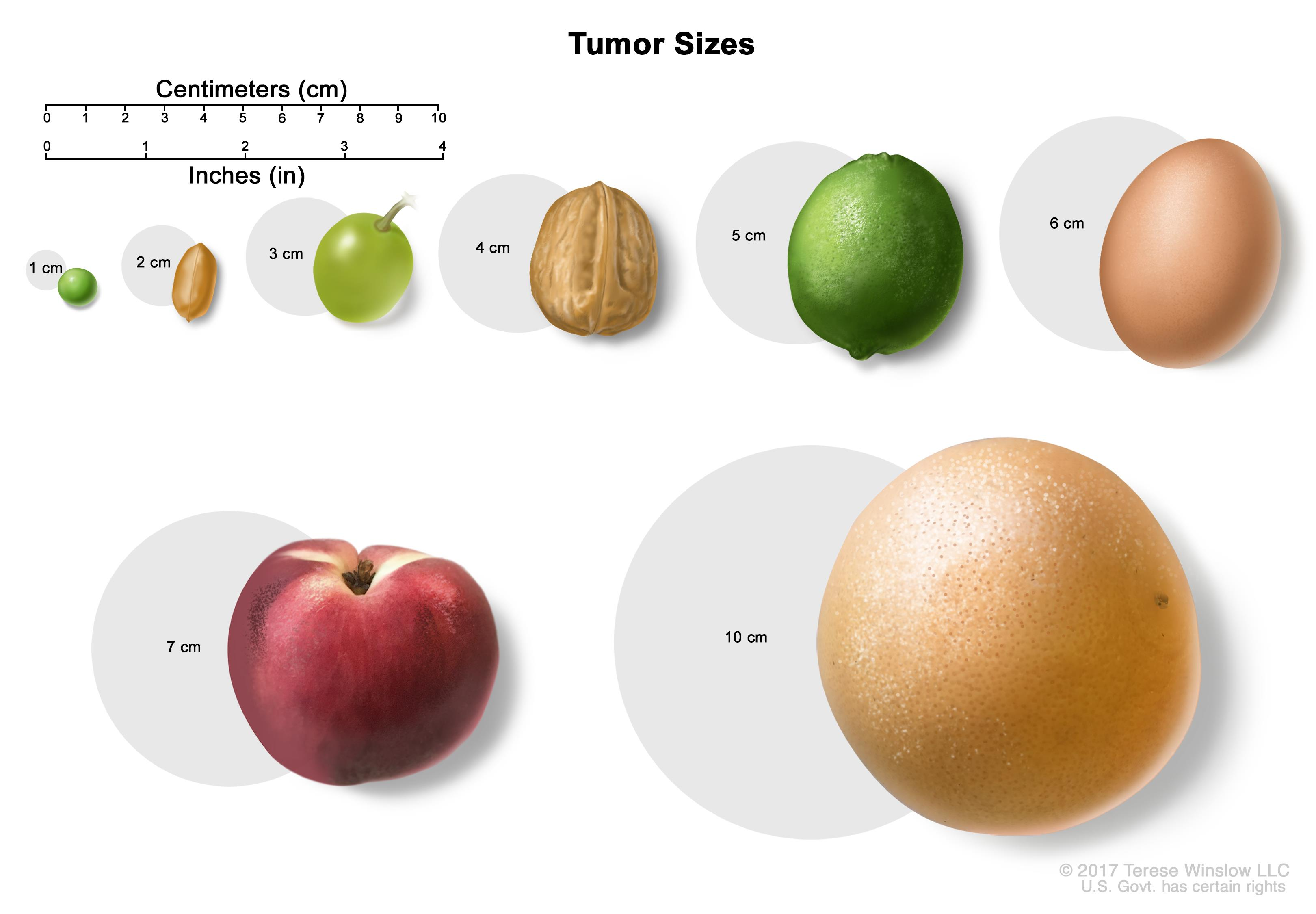 Tumor size compared to everyday objects; shows various measurements of a tumor compared to a pea, peanut, walnut, and lime.