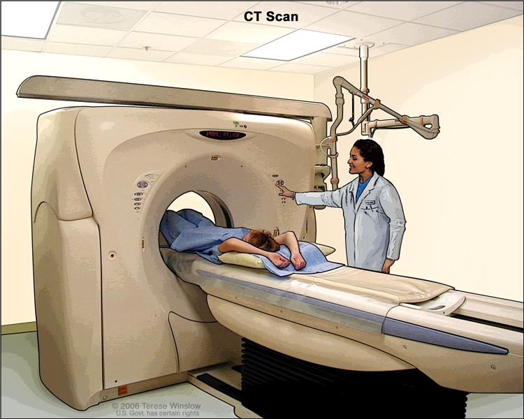 Computed tomography (CT) scan of the abdomen; drawing shows the patient on a table that slides through the CT machine, which takes x-ray pictures of the inside of the body.