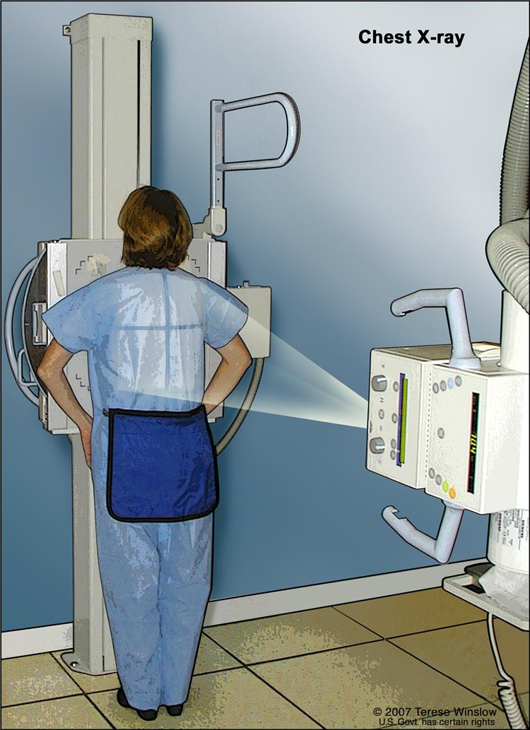 Chest x-ray; drawing shows the patient standing with her back to the x-ray machine. X-rays are used to take pictures of organs and bones of the chest. X-rays pass through the patient onto film.