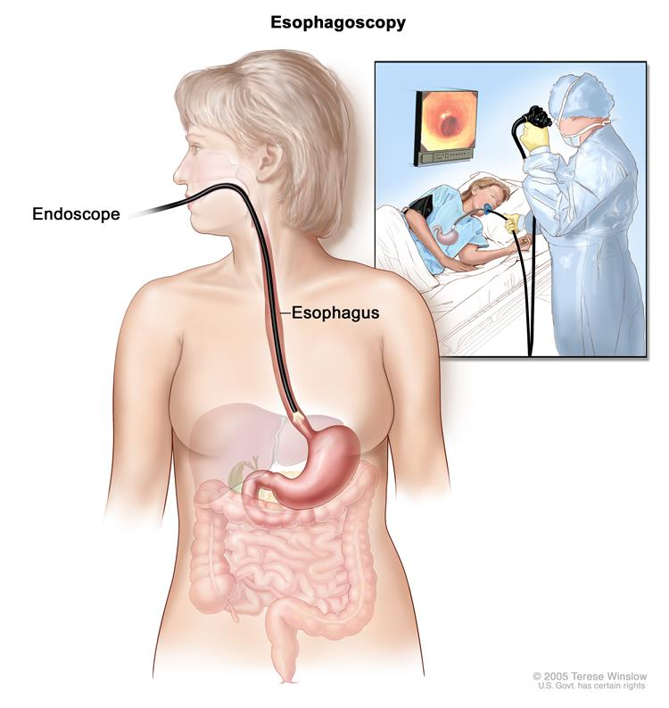 Esophagoscopy; shows endoscope inserted through the mouth and into the esophagus. Inset shows patient on table having an esophagoscopy.