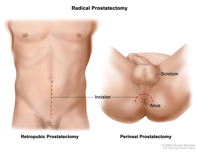 Definition of perineal prostatectomy - NCI Dictionary of Cancer ...