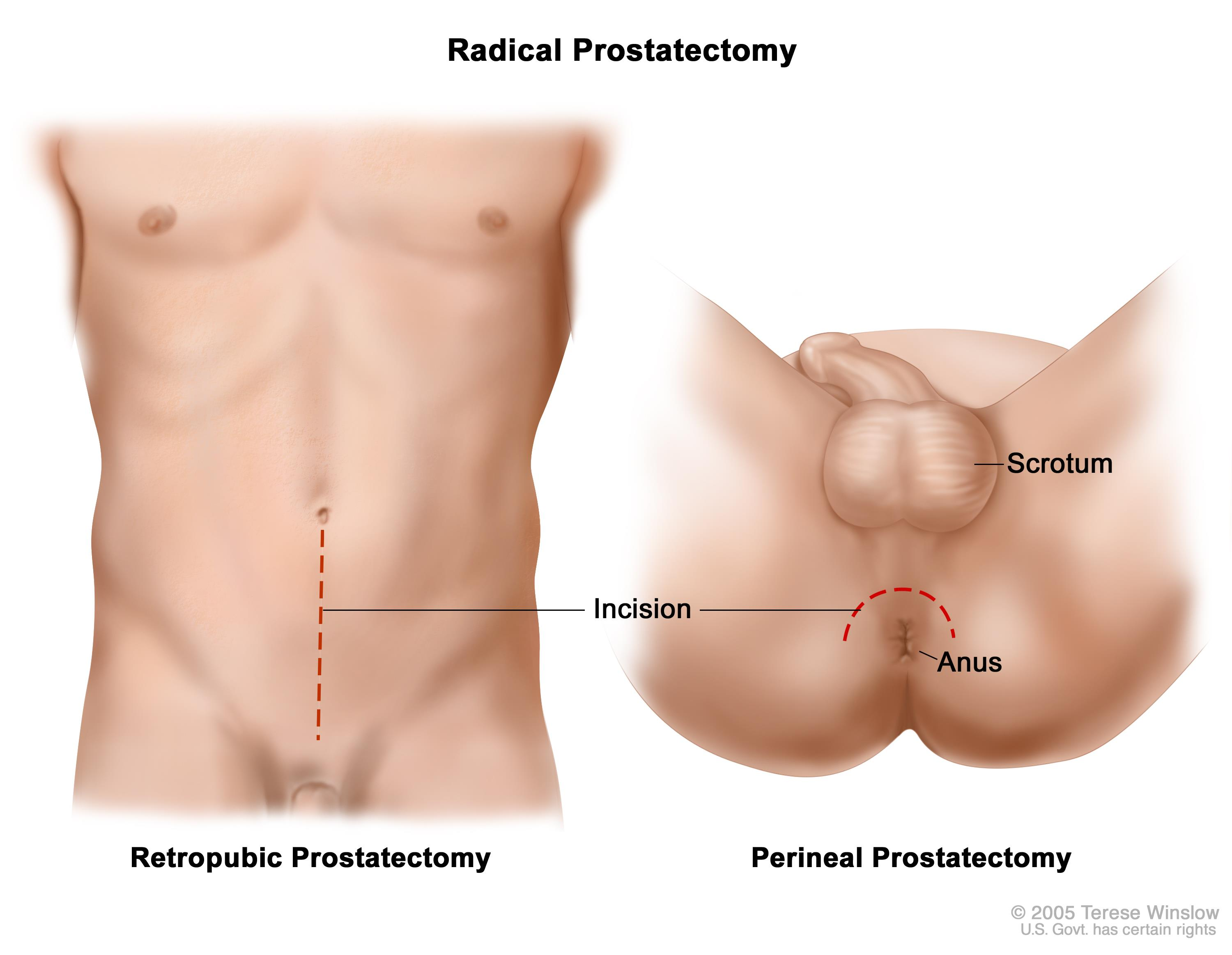 Area Between Scrotum And Rectum