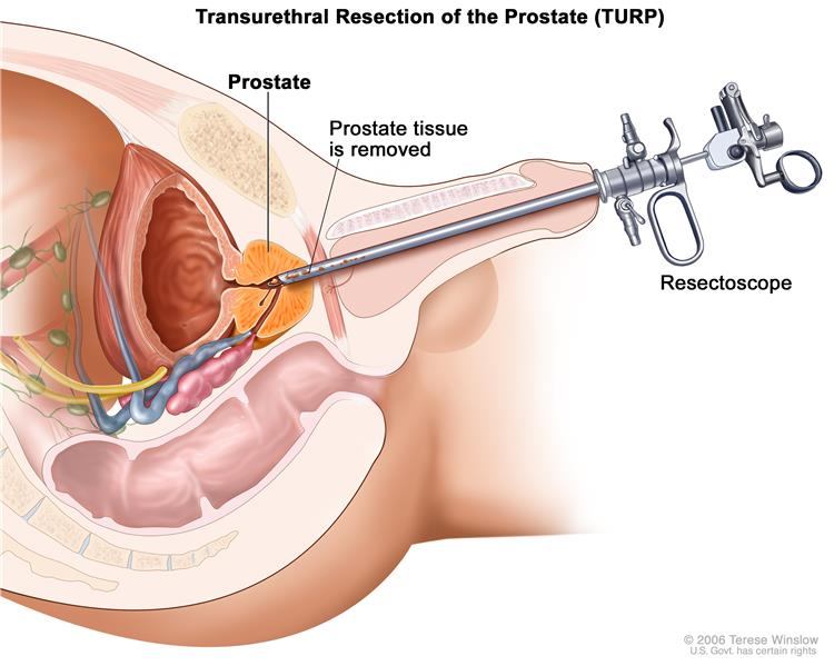 prostate cancer treatment (pdq®)—patient version - national cancer, Human Body