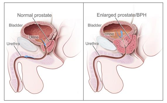 Two-panel drawing shows normal male reproductive and urinary anatomy and benign prostatic hyperplasia (BPH). Panel on the left shows the normal prostate and flow of urine from the bladder through the urethra. Panel on the right shows an enlarged prostate pressing on the bladder and urethra, blocking the flow of urine.