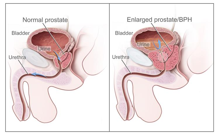 Prostate Cancer Treatment (PDQ��) - National Cancer Institute