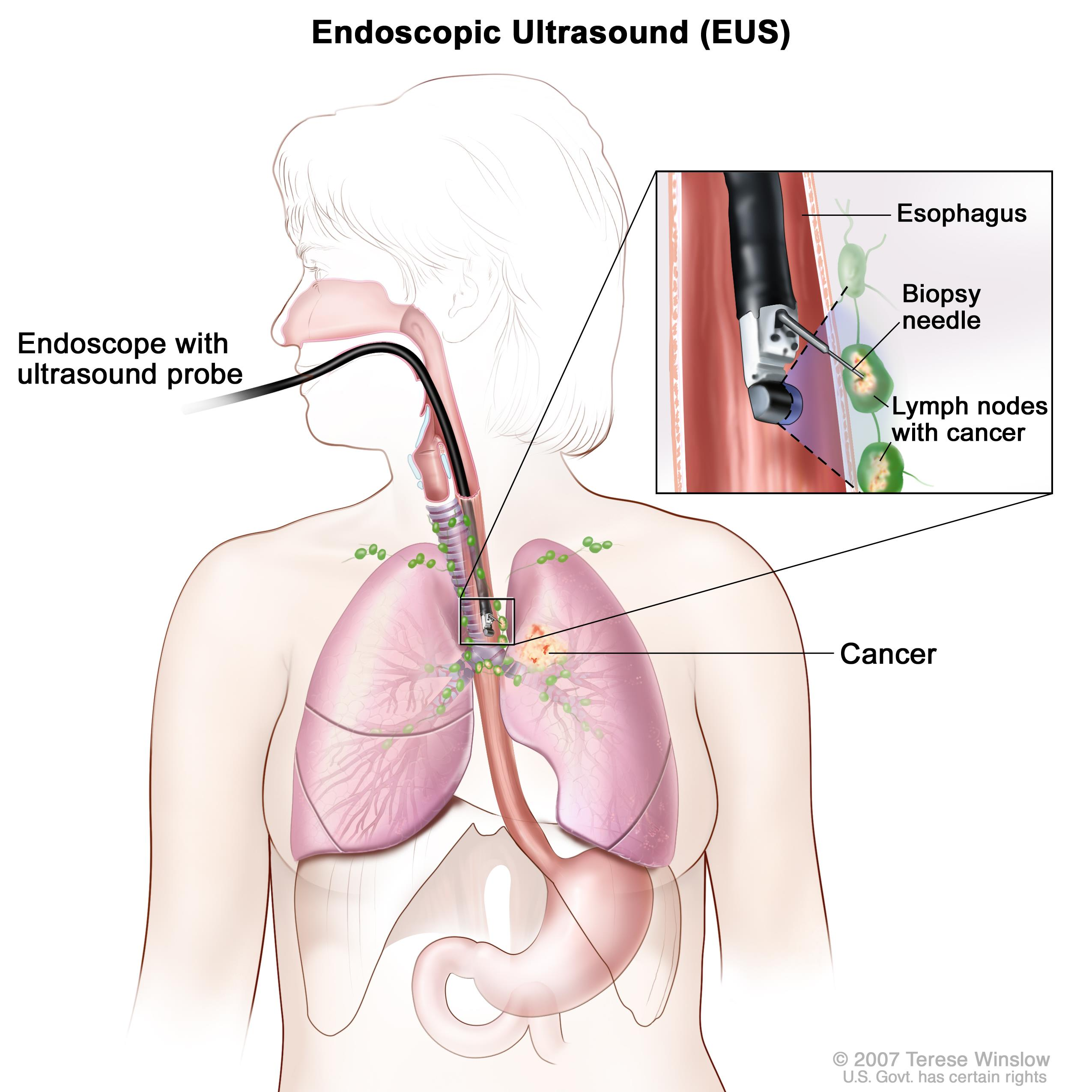 Non small cell lung cancer treatment pdqpatient version enlarge endoscopic ccuart Image collections