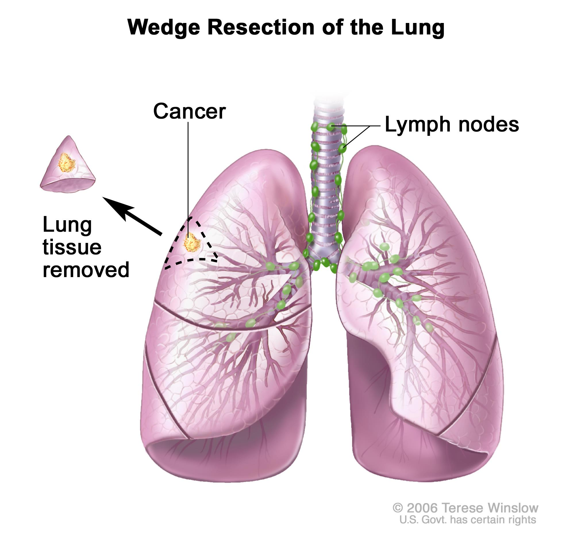 Non small cell lung cancer treatment pdqpatient version enlarge wedge resection of the lung ccuart Images